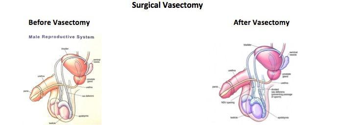 Вазэктомия до и после операции